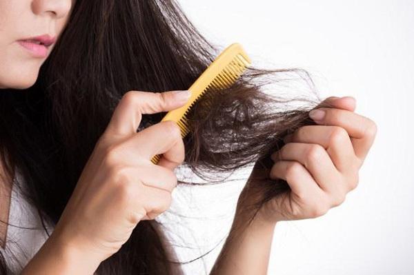 Giảm cân sai cách gây rụng tóc